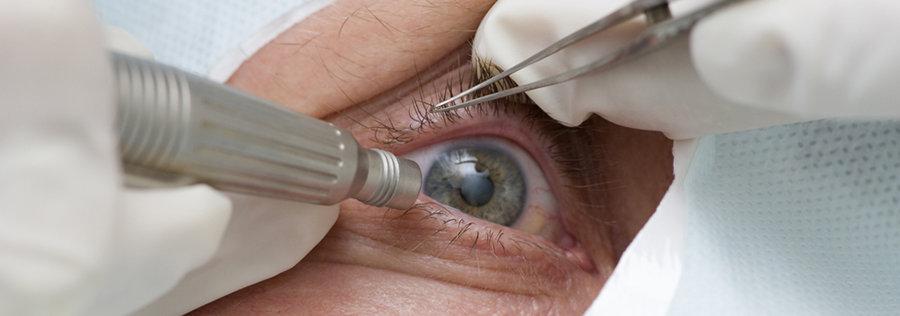 Man having cataract treated