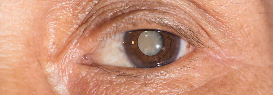 cataract in eye