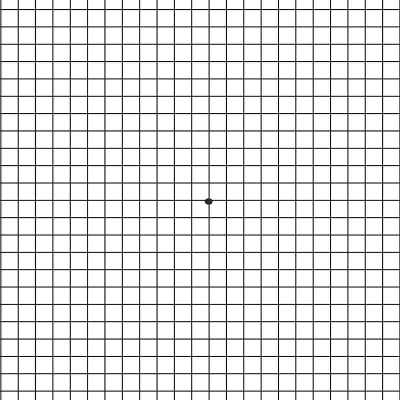 Amser grid for macular degeneration